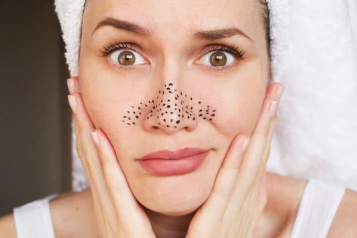 Чистая кожа за 5 минут: как выдавливать черные точки
